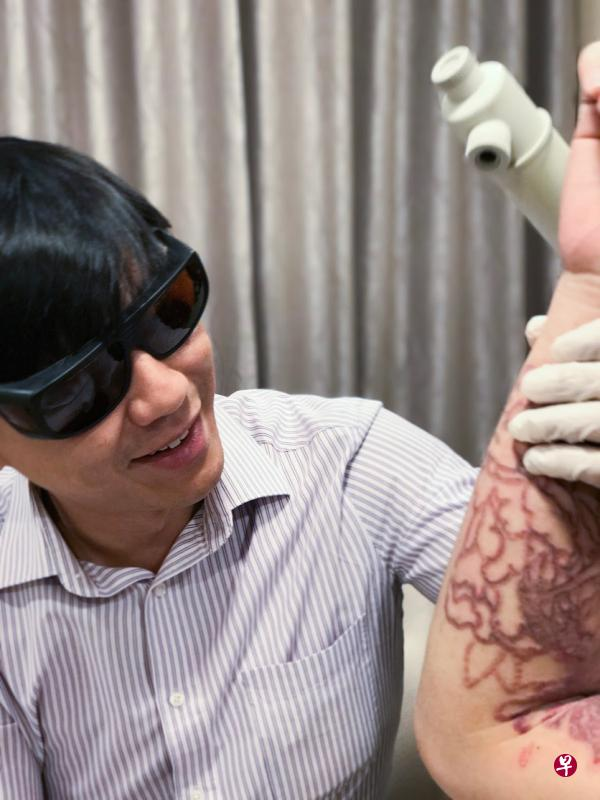 Dr. Kevin Chua doing tattoo removal