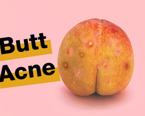 butt-acne-causes-tips